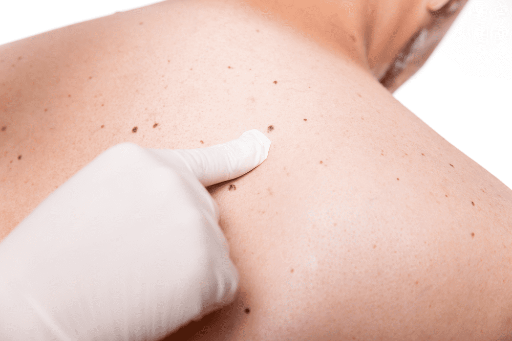 أعراض سرطان الجلد