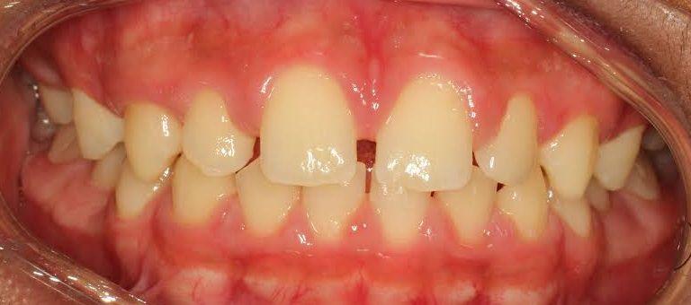 علاج فراغات الاسنان في المنزل