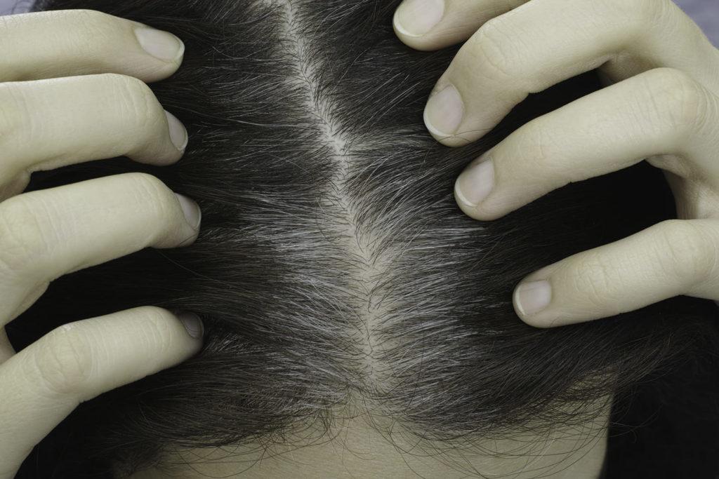 اضرار السهر على الشعر