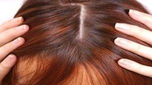 التهابات فروة الرأس