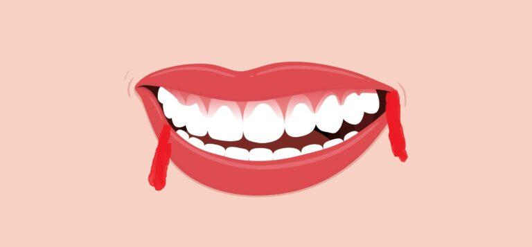 تعرف علي أسباب نزول دم من الفم