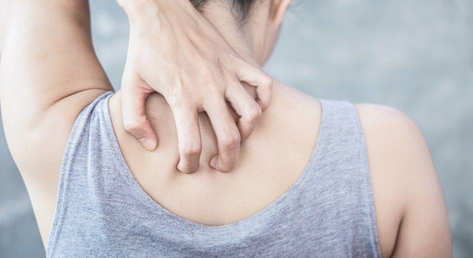 وصفات طبيعية لعلاج الحمونيل