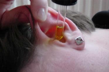 طريقة علاج إنسداد الأذن في المنزل