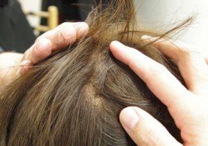زيت لتساقط الشعر