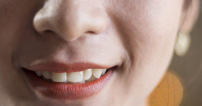 كيفية تبييض الاسنان