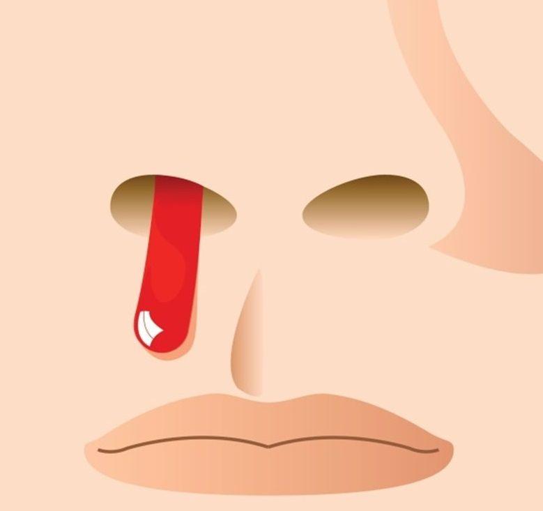 أسباب نزول دم من الأنف