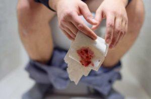وصفات لعلاج البواسير في المنزل