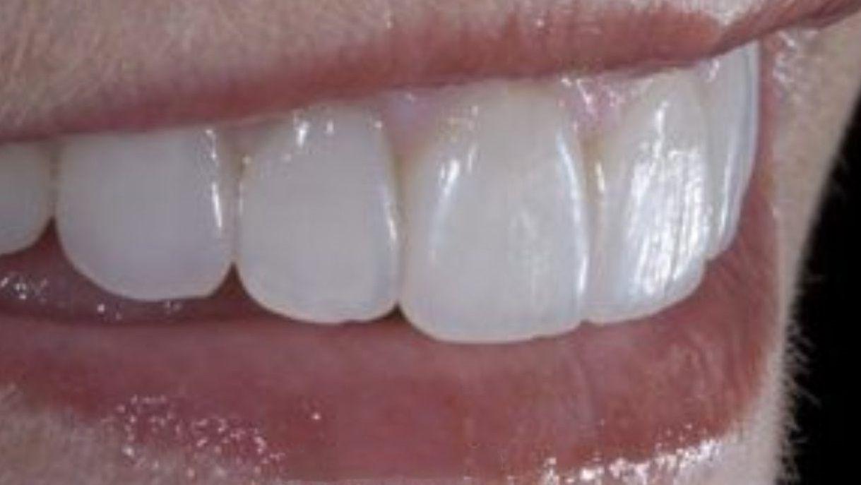 تنظيف الأسنان من الجير