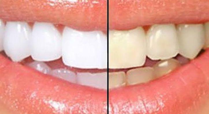 نصائح تنظيف الأسنان من الجير الاصفر بشكل نهائي