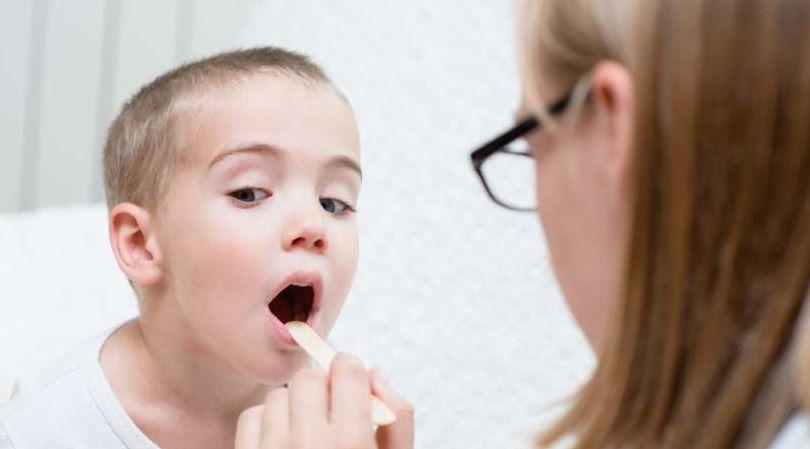 علاج التهاب اللوز عند الاطفال