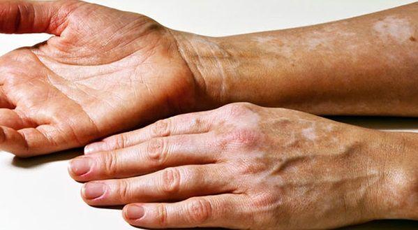 ما هو علاج مرض البهاق