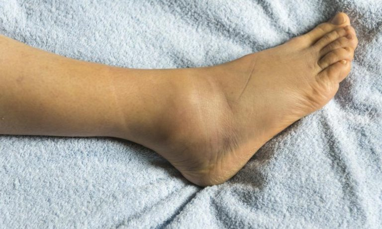 تعرف علي اسباب تورم القدمين وطريقة العلاج في المنزل