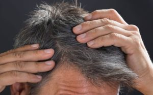 طريقة علاج الشعر الابيض