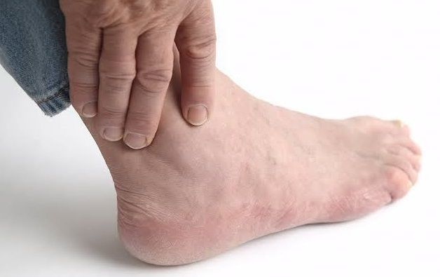 الوقاية من اسباب تورم القدمين