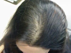 طريقة علاج الشعر الضعيف والخفيف